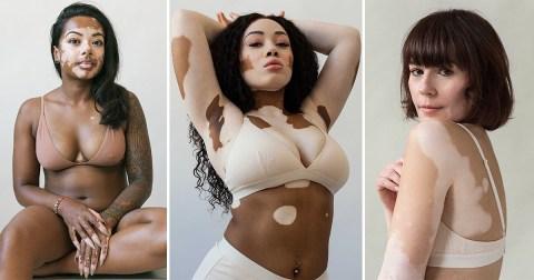 Photographer Creates Series To Celebrate Vitiligo After Developing It Herself Metro News