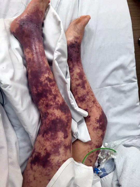 Awalnya Dokter Salah Diagnosis, Kaki Gadis 7 Tahun ini Terpaksa Diamputasi