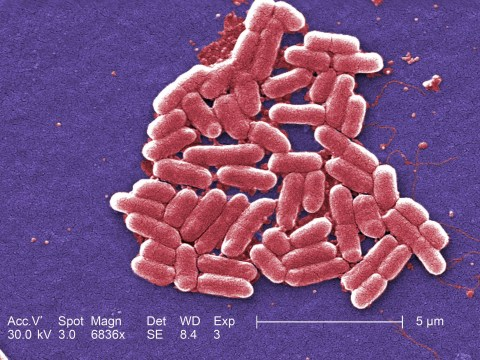 Scientists say the E.coli bacteria is more about toilet hygiene than uncooked meat
