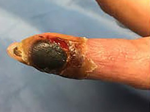 Woman's finger turns black after mistakenly injecting smallpox vaccine