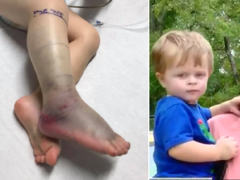 Boy, 2, nearly died after being savaged by venomous snake