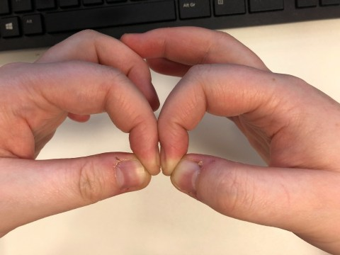 This 'diamond gap' fingernail test could show an early sign of lung cancer