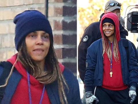 Halle Berry emerges with swollen and bruised eye on set of MMA movie after injury during fight scene