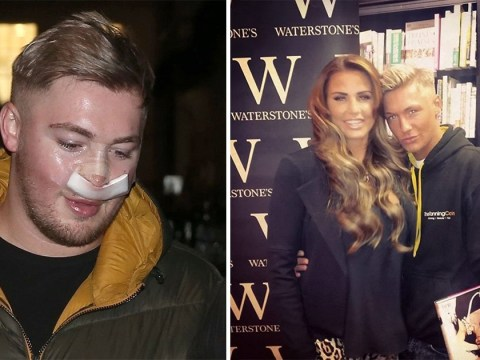 Katie Price superfan risks nose collapse following 4th nosejob after spending £100k in quest to look like former glamour model