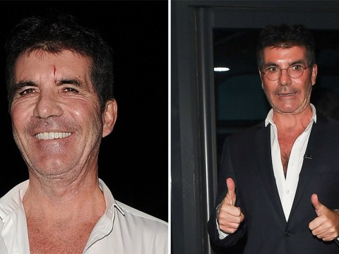 Simon Cowell sports nasty gash on head as he arrives for X Factor: Celebrity final