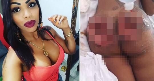 Picture of Brazillian mum Angela Pedrosa and picture of results of botched Brazillian butt lift surgery