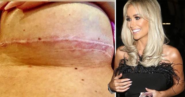 Laura Anderson implants