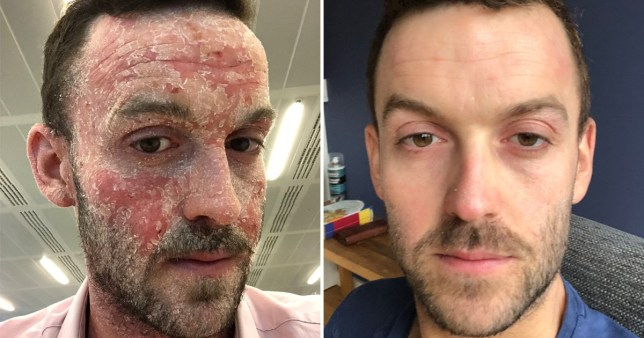Man who struggled with eczema on his face for years is treating the condition by drying out his skin