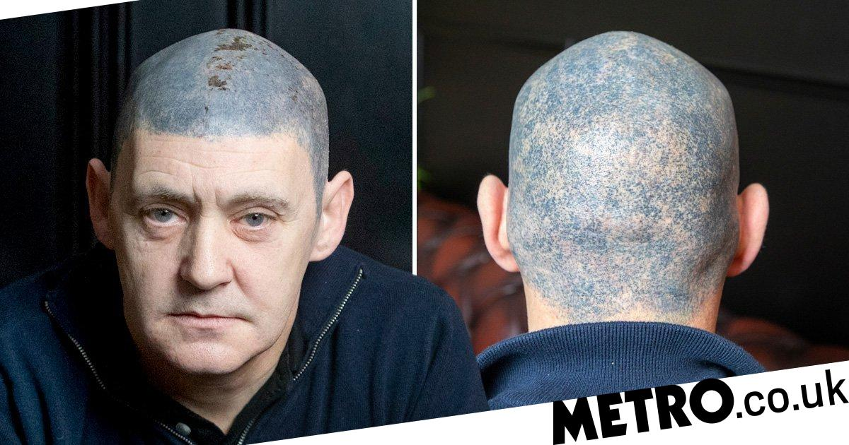 Fake Hair Tattoo Goes Wrong As Cancer Survivor Is Left With Bright Blue Head Metro News Lip amp brow tattoo gone wrong my tattoo horror story including pictures. fake hair tattoo goes wrong as cancer
