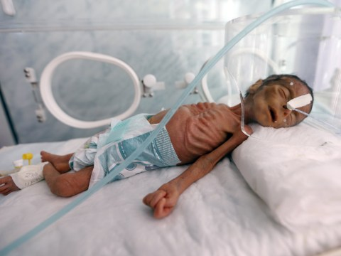 Skeletal baby in Yemeni hospital lays bare heartbreaking cost of conflict