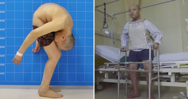 'Folding man' stands straight after 28 years of his face pressed to his thighs