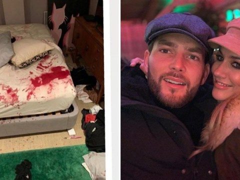 Lewis Burton denies blood-stained bed photos are his as he insists Caroline Flack is 'harmless'