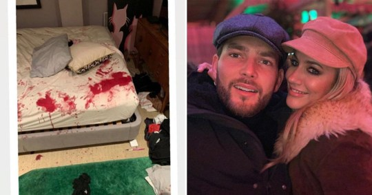 Lewis Burton denies blood-stained bed photos are his as he insists Caroline Flack is \'harmless\'
