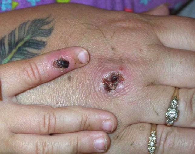 Monkey Pox Lesions