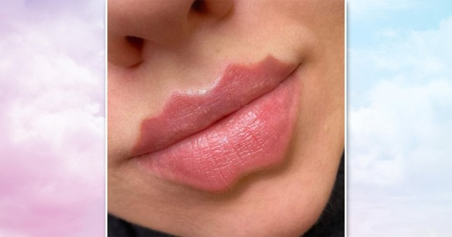 devil lip filler trend