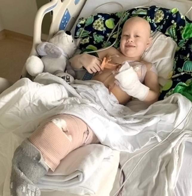 Boy Who Lost Leg To Cancer Has Knee Replaced With Foot So