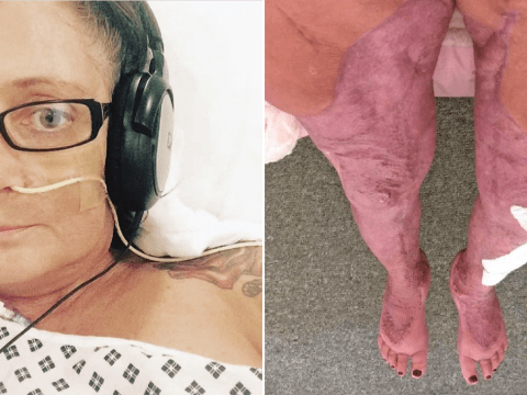Mum's £20k liposuction nearly kills her after she contracts a flesh-eating bug