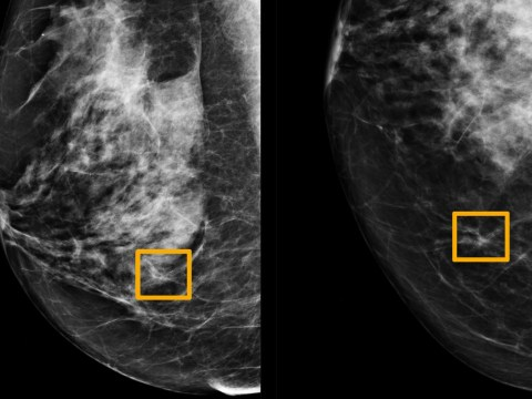 Google says its artificial intelligence can beat human doctors at spotting breast cancer