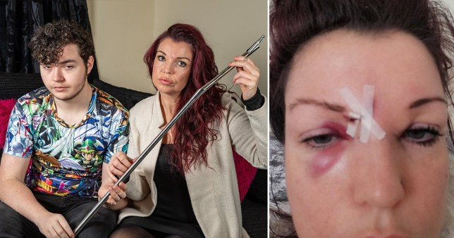 Mum 'scarred for life' after magic wand almost took eye out
