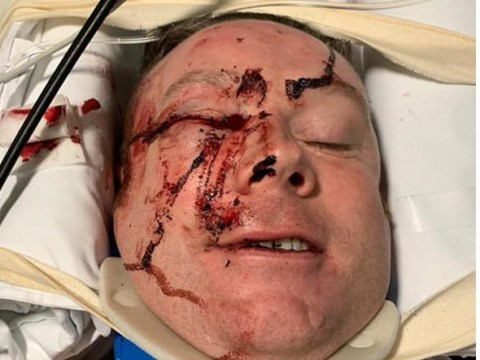 Horrific picture of policeman run over in hit-and-run while trying to stop car