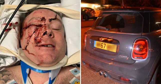 Metropolitan Police PC Jon Casey injured in hospital and the Mini Cooper suspected of hitting him