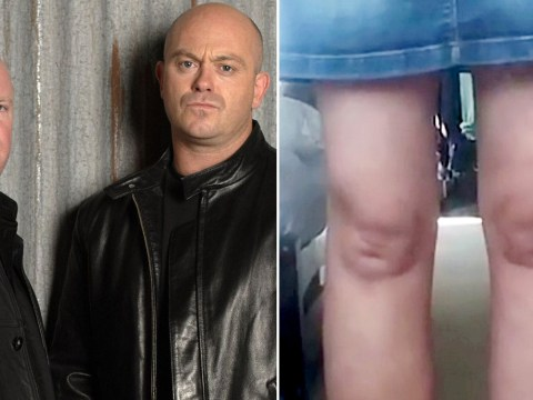 Woman becomes a walking work of art after realising her knees look exactly like EastEnders' Phil and Grant Mitchell