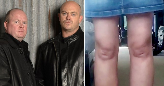 Mitchell brothers and knees