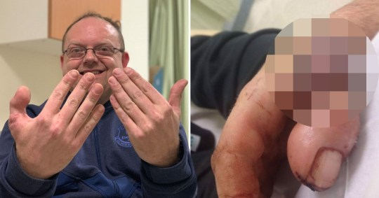 Cobbler has severed thumb replaced with his own big toe