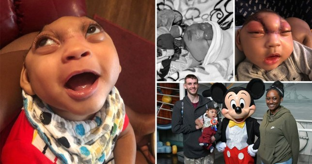 Baby born with brain poking from skull defies odds to celebrate first birthday