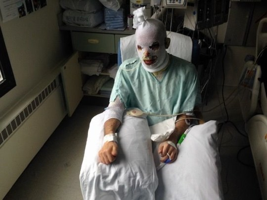 Jonathan (pictured) was transferred to a burn unit after being treated in intensive care for Stevens Johnson syndrome. This brave man had to close his eyes, with his hands tied and his body covered in PIG SKIN after a rare virus left him burning inside out. Jonathan Laird (38), an order entry specialist from Greenfield, Indiana, USA. In the US, Lamotrigine, a brand-name version of the drug Lamictal, was prescribed by his psychiatrist for depression in progress in early 2016. He was told that one of the possible side effects could be Stevens Johnson Syndrome (SJS) but supposedly He assured that the risks were low. Stevens Johnson Syndrome is a rare disorder caused by an unpredictable and adverse reaction to certain medications. It can also be caused by an infection. A month after taking Lamotrigina, Jonathan began to feel bad and on May 10 he woke up with conjunctivitis in both eyes and scaly skin on his chest, symptoms that, although uncomfortable, were not immediately worrying. MDWfeatures / Johnathan Laird