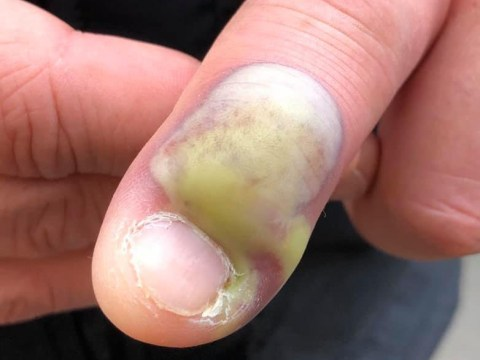This picture shows why you should think twice before biting your nails
