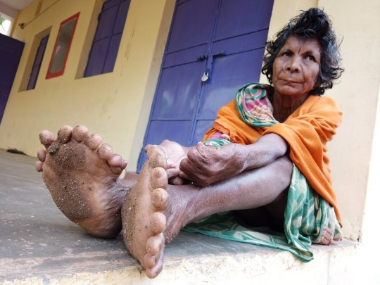 This woman from India is set to enter the Guinness Book Of World Records for having the most fingers and toes in the world. See SWNS story SWOCfingers. Kumari Nayak, 63, was born with polydactylism - a common abnormality at birth where the person has extra fingers and toes. She has 19 toes and 12 fingers in total and is set to enter the Guinness Book of World Records this year. Kumari beats the previous record holder, Devendra Suthar who is also from India and entered the record book in 2014 with 14 toes and 14 fingers.