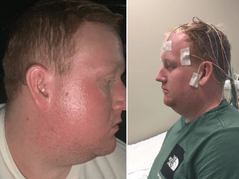 Man with rare skin condition says his face burns like he's 'sitting in an oven'