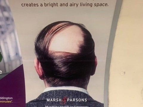 Estate agency reported by alopecia sufferers for featuring hair loss in property advert