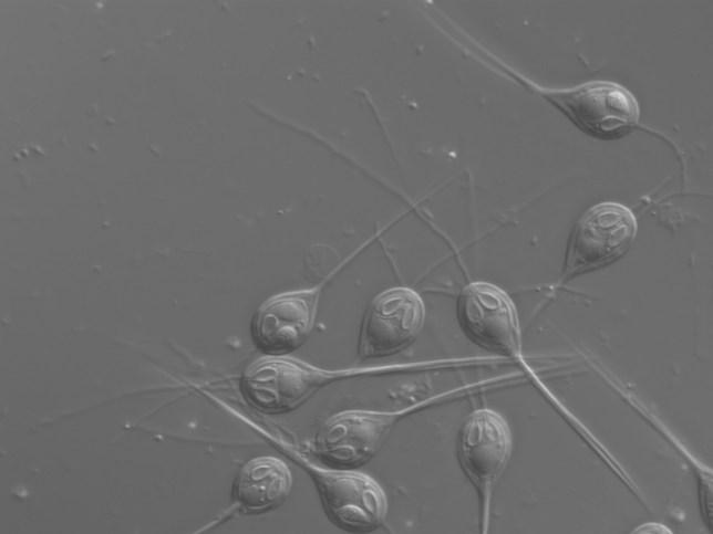 Henneguya salminicola is a parasite living inside the muscle tissue of salmon (Stephen Douglas Atkinson)
