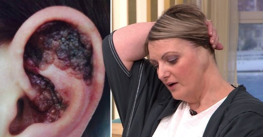 close up of woman's ear which had to be amputated due to melanoma
