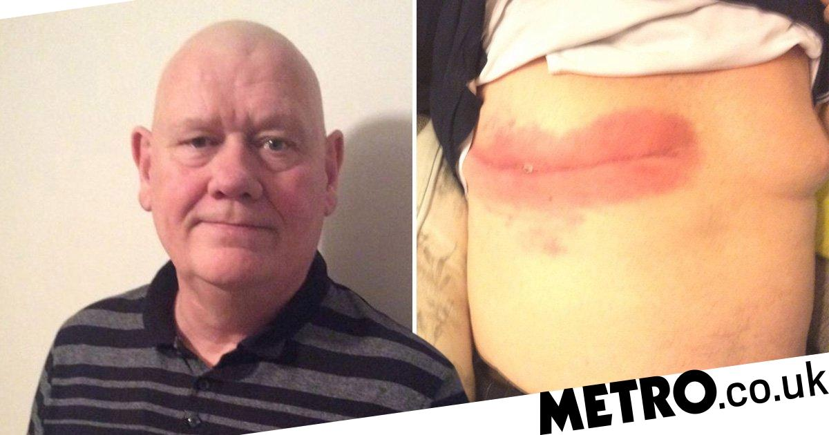 Dad with breast cancer 'rejected from support groups because he's a man'