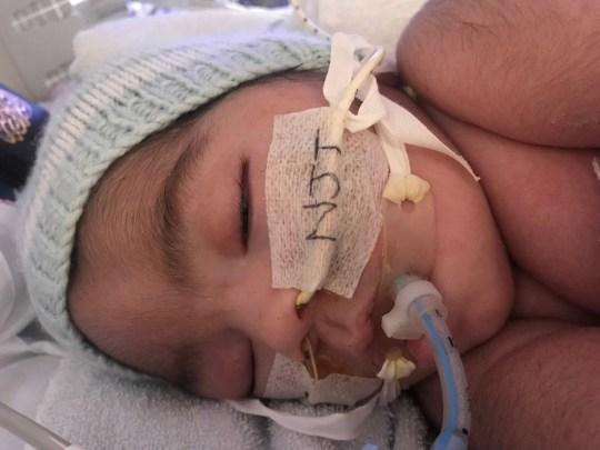 Ayah Ibu Hancur, Mereka Kalah di Pengadilan untuk Selamatkan Hidup Bayinya
