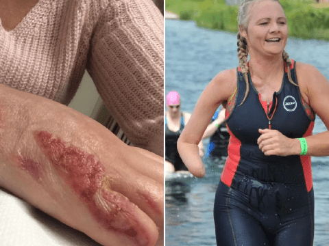 Mum begged doctors to amputate her hand for two decades after devastating car crash