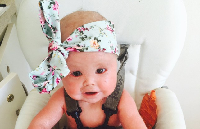 harper foy, who has harlequin ichthyosis