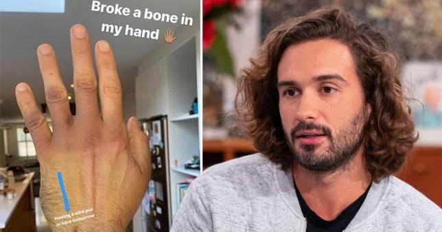 Joe Wicks explains broken bone in his hand