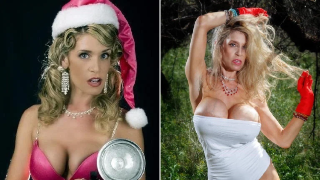 woman before and after boob jobs