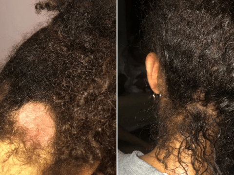 Woman creates her own Afro hair care brand after suffering from scalp psoriasis and alopecia