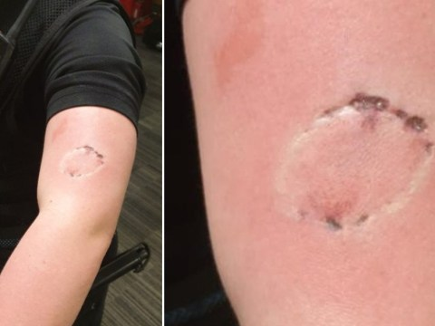 Man almost took chunk out of PC's arm after she told him not to visit others