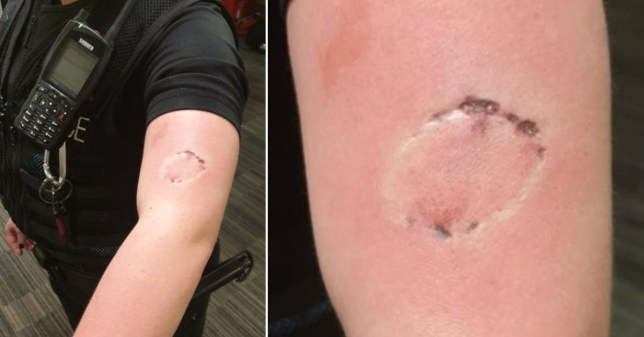 A Greater Manchester Police constable shows her wound after a man bit and punched her in Rochdale for trying to explain he shouldn't be visiting people's homes during the coronavirus (Covid-19) lockdown