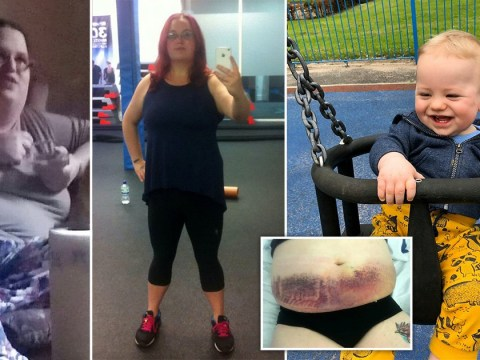 Woman loses five stone to get pregnant and ends up losing five pints of blood during labour