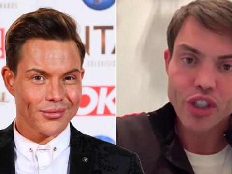 Towie's Bobby Norris hits back at online trolls after claims they made fun of his sexuality and appearance