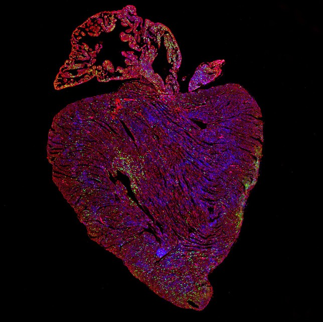 Undated handout photo issued by Dr Cathy Wilson/University of Cambridge of an adult mouse heart after activation of both proteins vital for cell replication. A gene that allows cancers to spread could help in the treatment of heart disease, scientists believe. PA Photo. Issue date: Tuesday April 14, 2020. A study on mice has found that making the gene, called Myc, overactive can kickstart the regeneration of heart cells. See PA story SCIENCE Heart. Photo credit should read: Dr Cathy Wilson/University of Cambridge/PA Wire NOTE TO EDITORS: This handout photo may only be used in for editorial reporting purposes for the contemporaneous illustration of events, things or the people in the image or facts mentioned in the caption. Reuse of the picture may require further permission from the copyright holder.