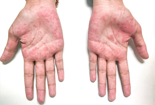 Erythematous macular rash on both palms.; Shutterstock ID 1257871984; Purchase Order: -