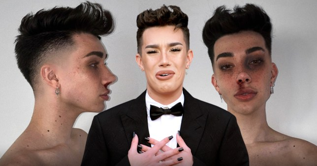 James Charles slammed for posing as 'domestic violence' victim in sick trend